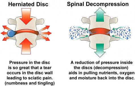 DTS Spinal Decompression Traction System Chiropractic Service